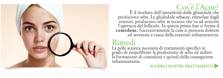 Acne cause rimedi